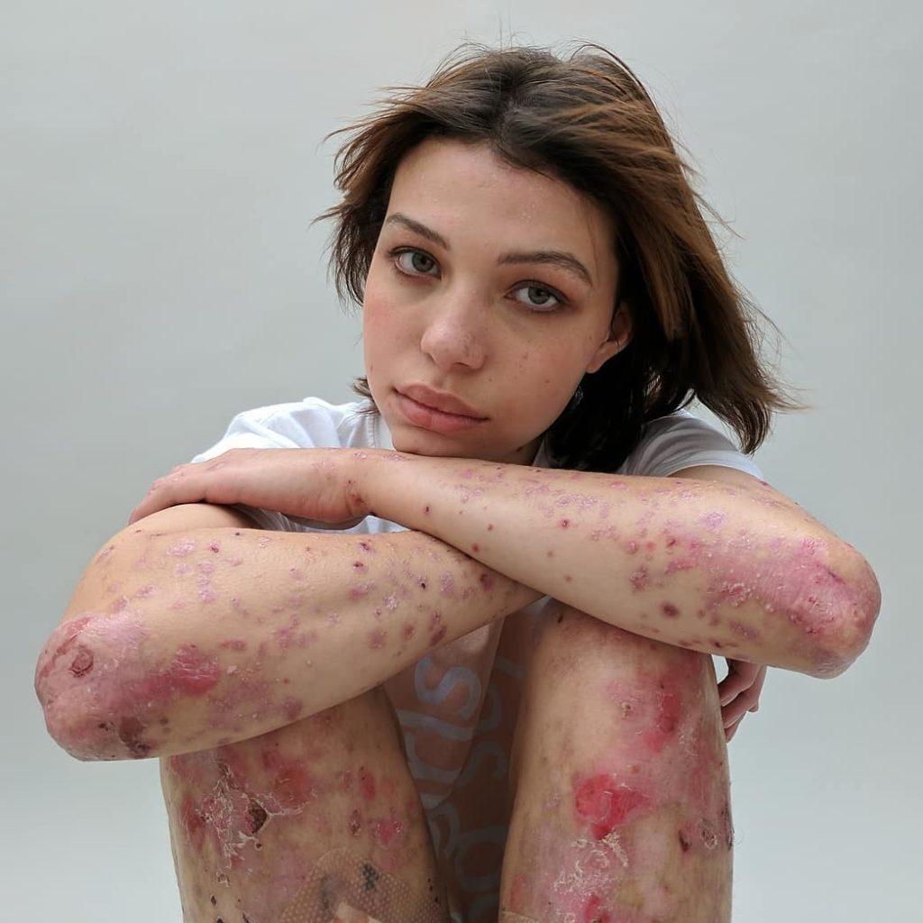 """""""Behind the scars"""" - niezwykła sesja dziewczyn z bliznami"""